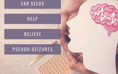 Ear Seeds Help Relieve Pseudo-Seizures